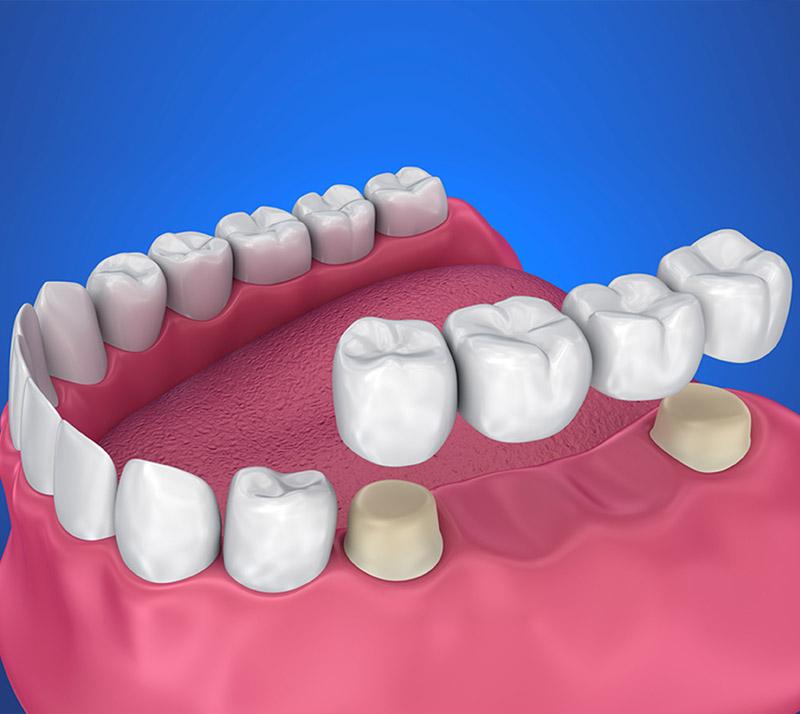 dental bridges near you